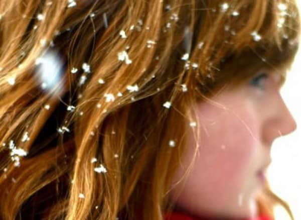 hair fall is accelerated by dandruff